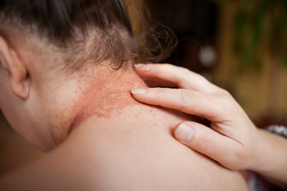 yeast infection psoriasis